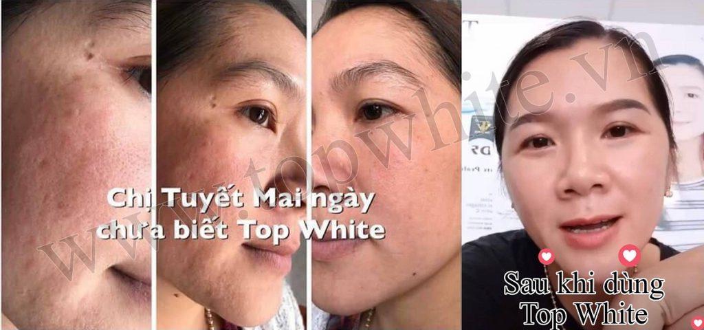 hình ảnh khách hàng sử dụng mỹ phẩm Top White