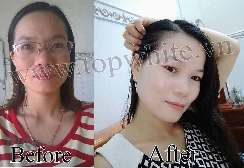 Top White hình ảnh khách hàng trước sau sử dụng